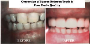 Correction of Spaces Between Teeth and Poor Shade Quality