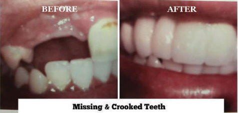 Missing & Crooked Teeth