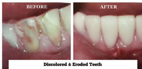 Discolored & Eroded Teeth