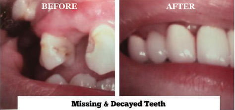 Missing & Decayed Teeth