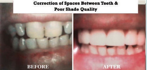 Correction of Spaced Between Teeth and Poor Shade Quality