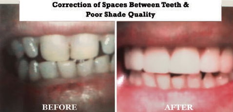 Crown Restoring Correct Vertical Dimension & Shade Quality